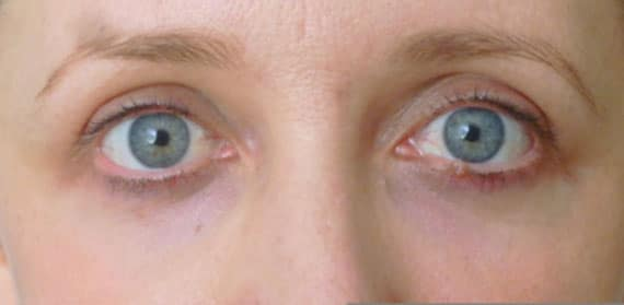 Lower Eyelid Blepharoplasty - After