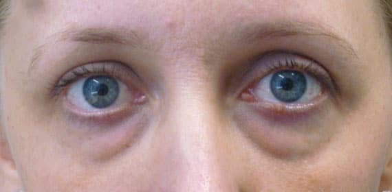 Lower Eyelid Blepharoplasty - Before