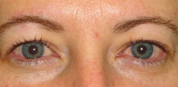 Upper Lid Blepharoplasty 02 - Before