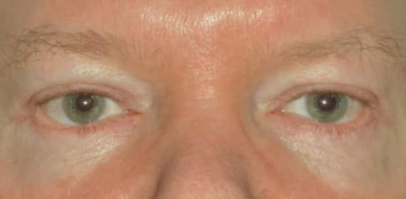 Male Upper Lid Blepharoplasty - After - Dr Angelo Tsirbas